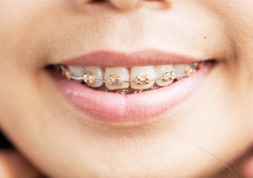 ortodoncia-1