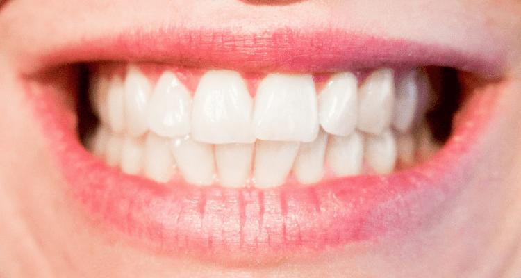Consejos para mejorar tu sonrisa