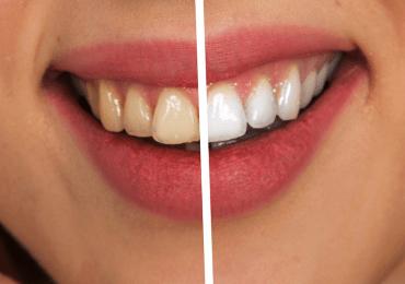 Qué hacer después de un blanqueamiento dental