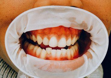 ¿Qué son los dientes supernumerarios o hiperdoncia?