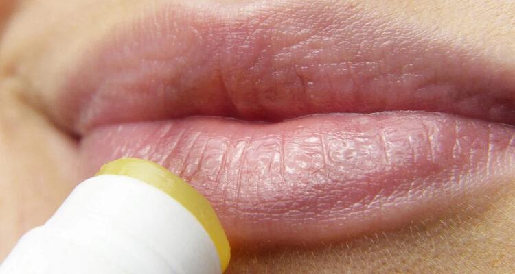 ¿Qué debes saber del herpes oral?